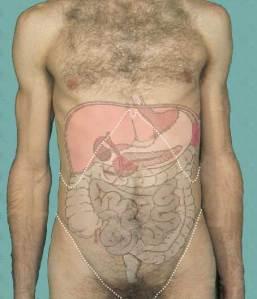 abdomensurf