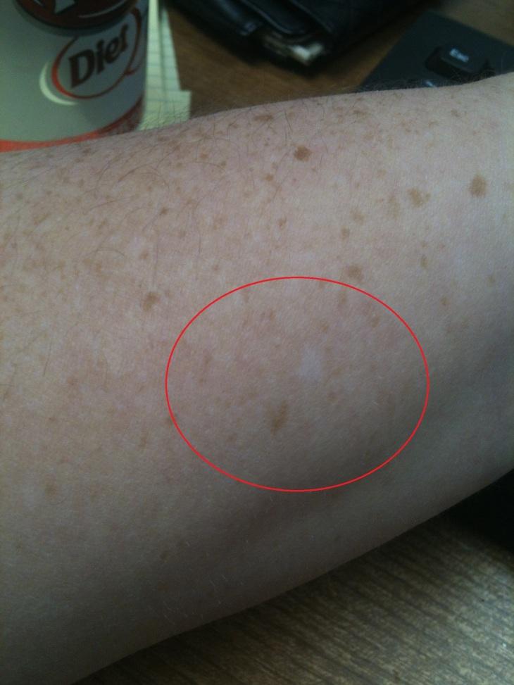 reverse freckle